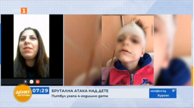 Питбул нахапа жестоко 4-годишно дете