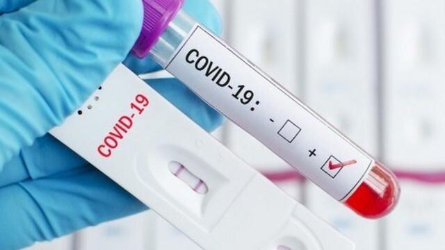 В Русенско са установени 56 нови случая на коронавирус за 24 часа