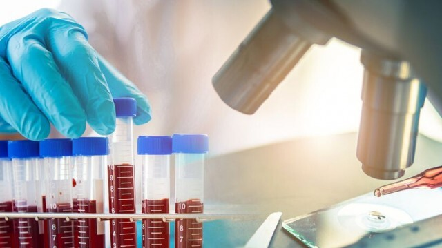 14 новорегистрирани с коронавирус в Плевенска област, 819 за страната