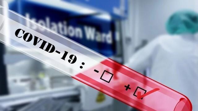 255 са новодиагностицираните с COVID-19