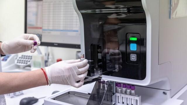 Нито едно електронно направление за PCR не стигна до лабораторията в Русе