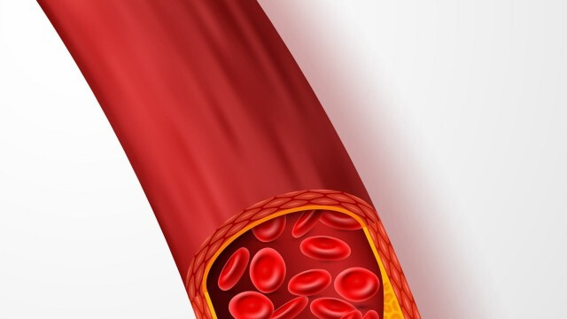 """""""Медика"""" продължава кампанията за чисти кръвоносни съдове и през месец август"""