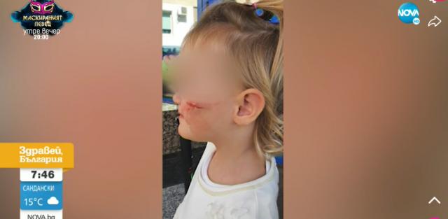 Дете пострада в такси заради ядосан шофьор