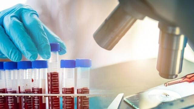 Само 1 нов случай на коронавирус в област Русе за денонощие, 163 - в страната
