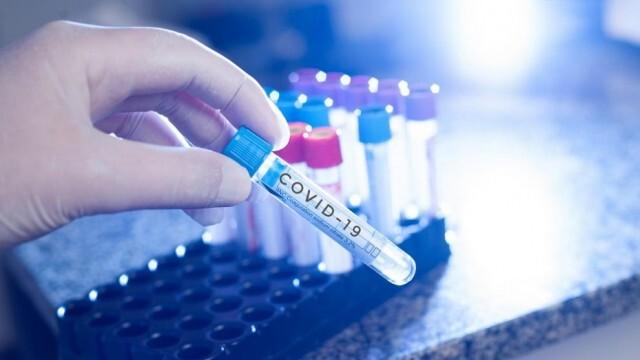Нов антирекорд! 240 са новите случаи на COVID-19 у нас